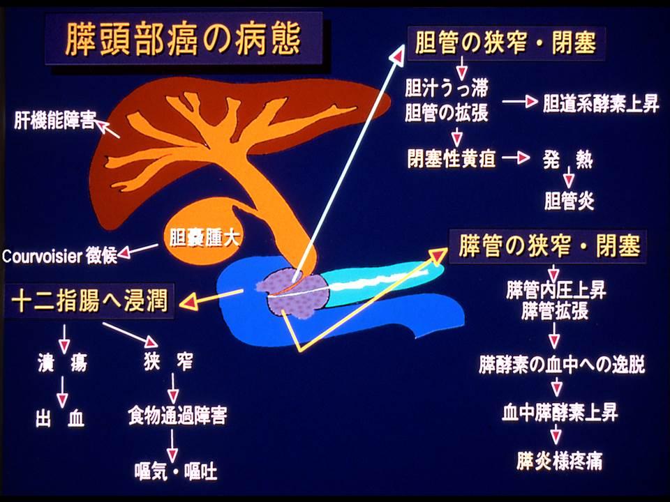 膵頭部癌の病態