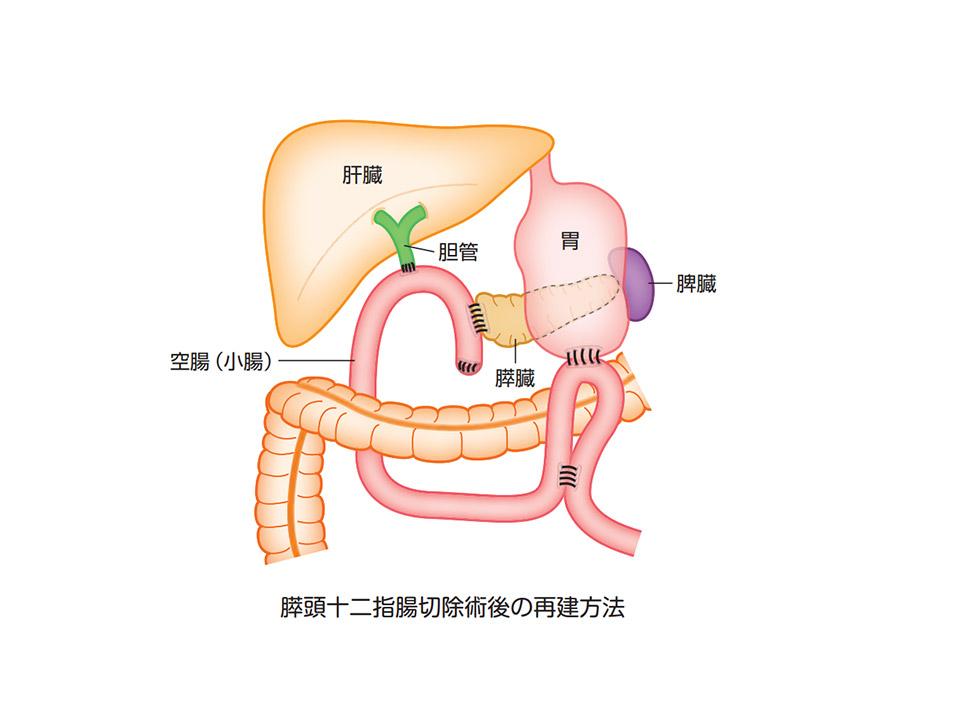 膵頭十二指腸切除術後の再建方法
